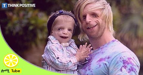 Jono Lancaster, Abandoned By His Parents For Being Ugly is an Inspiration to Many